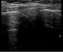 半月板・内側側副靭帯
