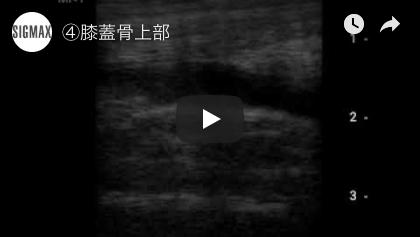 膝蓋骨上部(22秒)