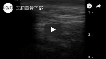 膝蓋骨下部(21秒)