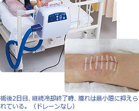 術後2日目、継続冷却終了時、腫れは最小限に抑えられている。(ドレーンなし)画像