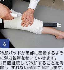 6,冷却パッドが患部に密着するように弾力包帯を巻いていきます。2日間継続して冷却することを考慮し、ずれない程度に固定します。