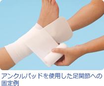 アンクルパッドを使用した足関節への固定例画像