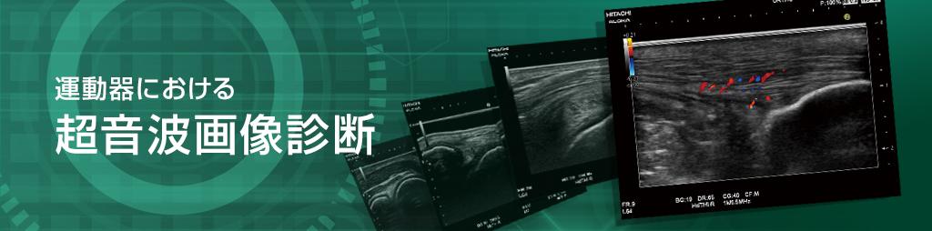 運動器における超音波画像診断