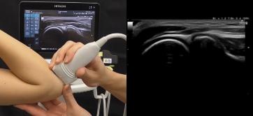 超音波診断イメージ